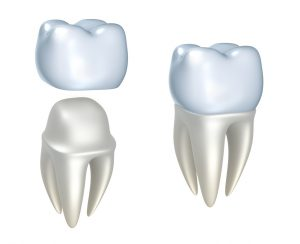 What are dental crowns, and how can they help make your teeth strong? Find out from your dentist in Virginia Beach, VA.