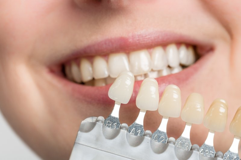 Patient smiling next to different shades of veneers