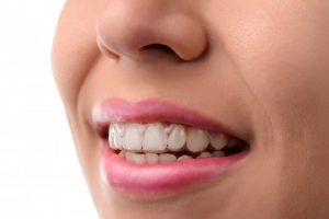 woman fixing TMJ with Invisalign